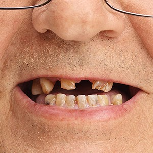 Complications from Missing Teeth Could Limit Your Replacement Options