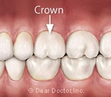 Crowns Preserve the Tooth While Offering Greater Protection Than a Filling