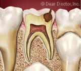 Saving a Diseased Primary Tooth Could Benefit Future Oral Health