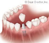 What's the Right Age for Dental Implants?