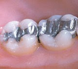 Dental Amalgam Fillings Remain a Safe and Reliable Tooth Restoration Option