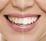 Home vs. Professional Teeth Whitening – Weighing Your Options