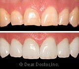 You Can Put On a Great Face with Veneers and Crowns